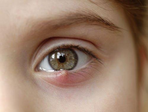 Eye Stye - Hordeolum