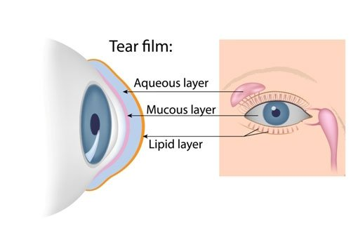 Aqueous Deficient Dry Eye
